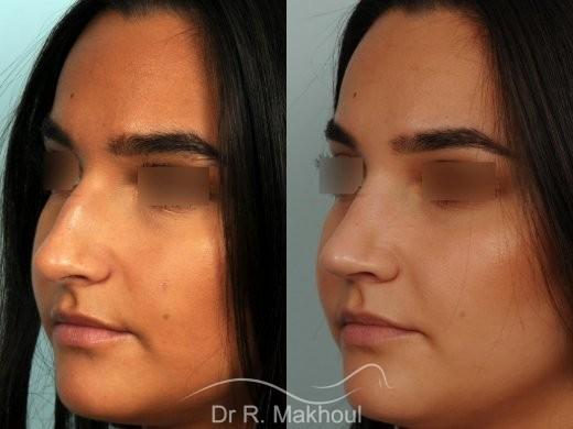 Rhinoplastie ultrasonique primaire vue de face avant-apres