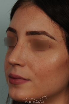 Rhinoplastie ultrasonique primaire sur peau fine vue de face apres