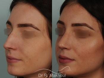 Rhinoplastie ultrasonique primaire sur peau fine vue de face avant-apres