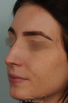 Rhinoplastie ultrasonique primaire sur peau fine vue de face avant