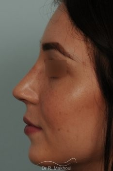 Rhinoplastie ultrasonique primaire sur peau fine vue de profil apres