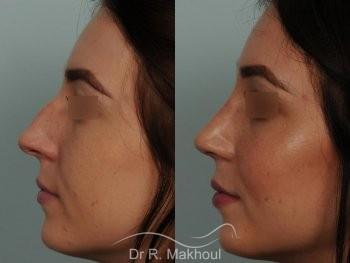 Rhinoplastie ultrasonique primaire sur peau fine vue de profil avant-apres