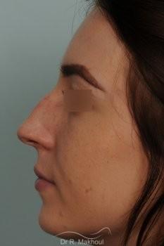 Rhinoplastie ultrasonique primaire sur peau fine vue de profil avant