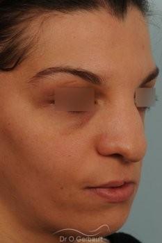 Séquelle de fente labiopalatine vue de dos avant