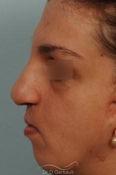 Séquelle de fente labiopalatine vue de profil avant