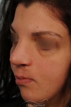 Séquelle de fente labiopalatine vue de quart apres