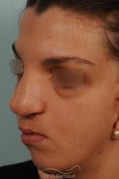 Séquelle de fente labiopalatine vue de quart avant