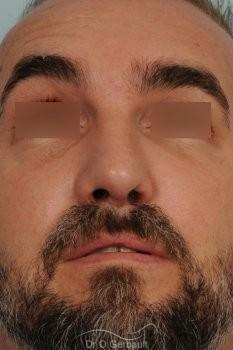 Séquelle de fente unilatérale vue de dos apres