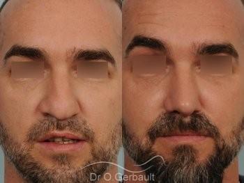 Séquelle de fente unilatérale vue de face avant-apres