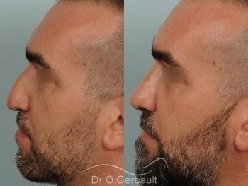 Séquelle de fente unilatérale vue de profil avant-apres