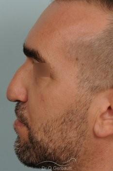 Séquelle de fente unilatérale vue de profil avant
