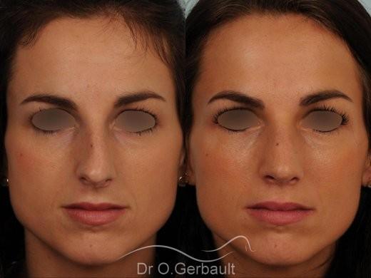 Déviation septum et bosse vue de face avant-apres