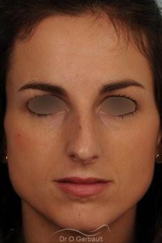 Déviation septum et bosse vue de face avant