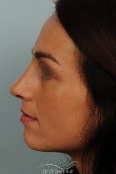 Déviation septum et bosse vue de profil apres
