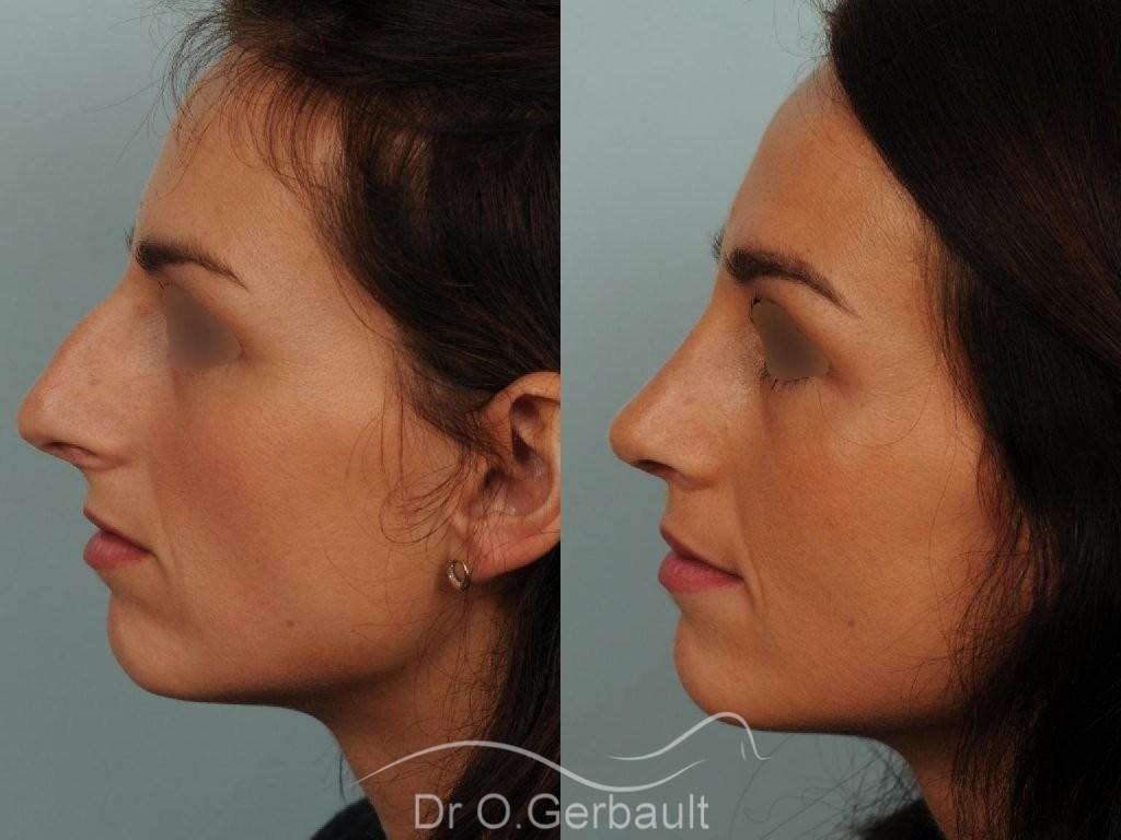 Déviation septum et bosse vue de profil avant-apres