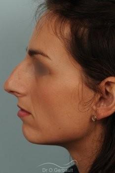 Déviation septum et bosse vue de profil avant