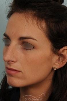 Déviation septum et bosse vue de quart avant