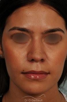 Rhinoplastie ethnique structurelle sur peau épaisse vue de face apres