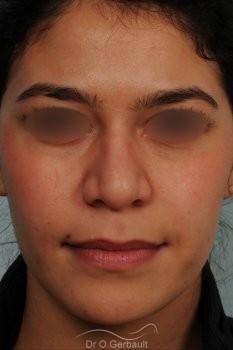Rhinoplastie ethnique structurelle sur peau épaisse vue de face avant