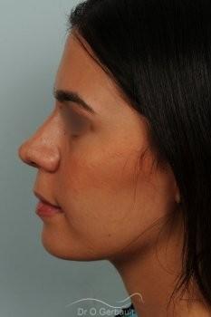 Rhinoplastie ethnique structurelle sur peau épaisse vue de profil apres