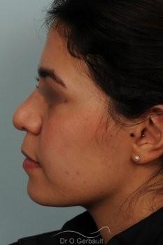Rhinoplastie ethnique structurelle sur peau épaisse vue de profil avant