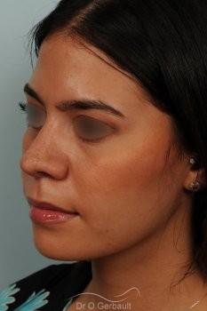 Rhinoplastie ethnique structurelle sur peau épaisse vue de quart apres