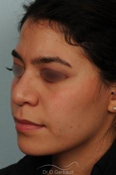 Rhinoplastie ethnique structurelle sur peau épaisse vue de quart avant
