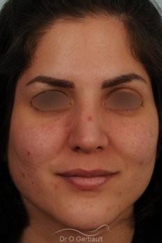Jeune femme au nez large avec une bosse asymétrique vue de face apres