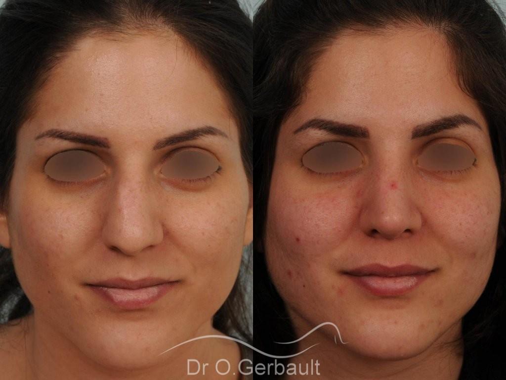 Jeune femme au nez large avec une bosse asymétrique vue de face avant-apres
