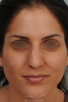 Jeune femme au nez large avec une bosse asymétrique vue de face avant