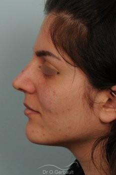 Jeune femme au nez large avec une bosse asymétrique vue de profil apres
