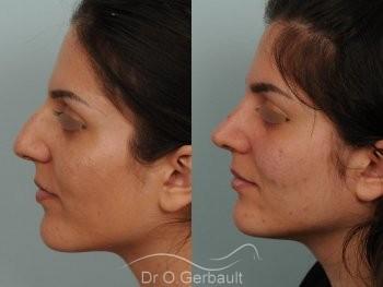 Jeune femme au nez large avec une bosse asymétrique vue de profil avant-apres