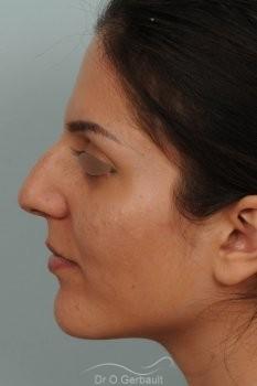 Jeune femme au nez large avec une bosse asymétrique vue de profil avant