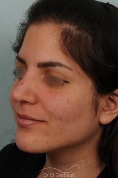 Jeune femme au nez large avec une bosse asymétrique vue de quart apres
