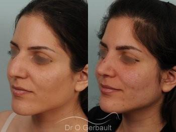 Jeune femme au nez large avec une bosse asymétrique vue de quart avant-apres