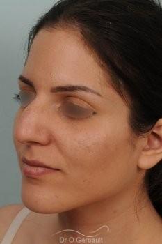 Jeune femme au nez large avec une bosse asymétrique vue de quart avant