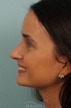 Narines larges et pointe tombante vue de profil apres