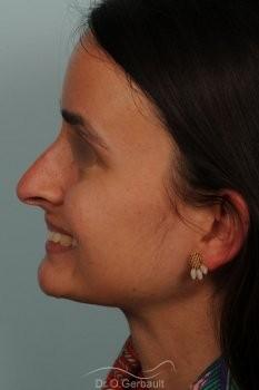 Narines larges et pointe tombante vue de profil avant