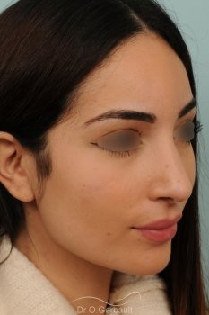 Nez de type maghrébin avec une pointe large vue de face apres