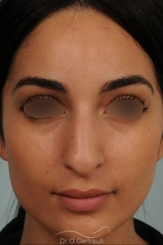 Nez de type maghrébin avec une pointe large vue de face avant