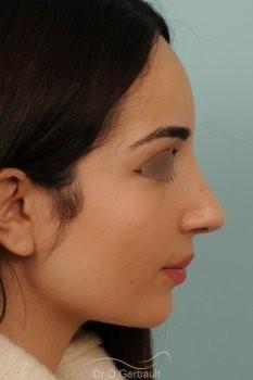 Nez de type maghrébin avec une pointe large vue de profil apres