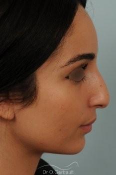 Nez de type maghrébin avec une pointe large vue de profil avant