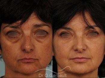 Blépharoplastie lipofillig cernes marqués vue de face avant-apres