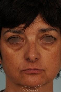 Blépharoplastie lipofillig cernes marqués vue de face avant