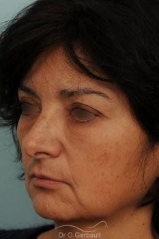 Blépharoplastie lipofillig cernes marqués vue de profil apres