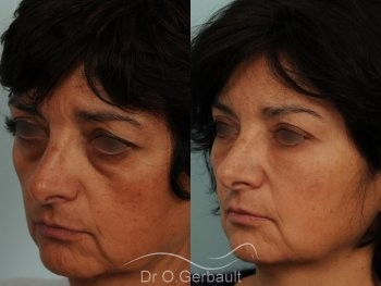 Blépharoplastie lipofillig cernes marqués vue de profil avant-apres