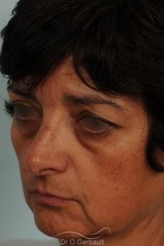 Blépharoplastie lipofillig cernes marqués vue de profil avant