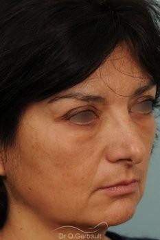 Blépharoplastie lipofillig cernes marqués vue de quart apres