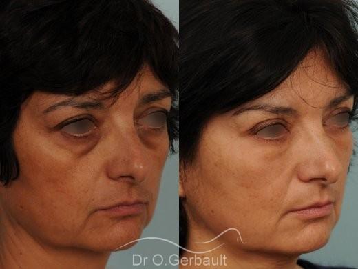 Blépharoplastie lipofillig cernes marqués vue de quart avant-apres