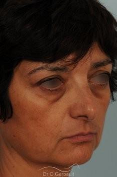 Blépharoplastie lipofillig cernes marqués vue de quart avant